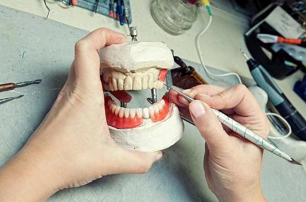 Курсы для зубных техников