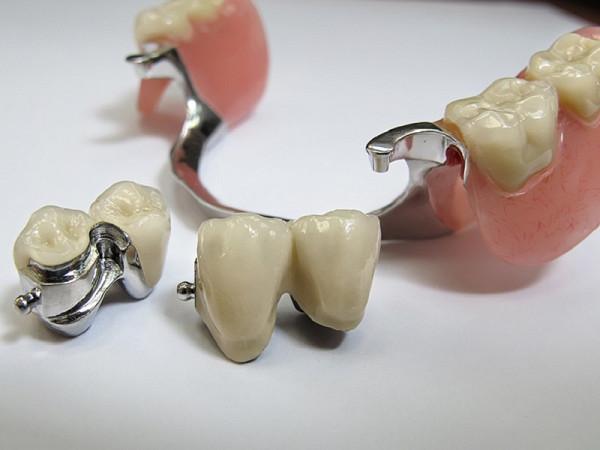 Зубные бюгели