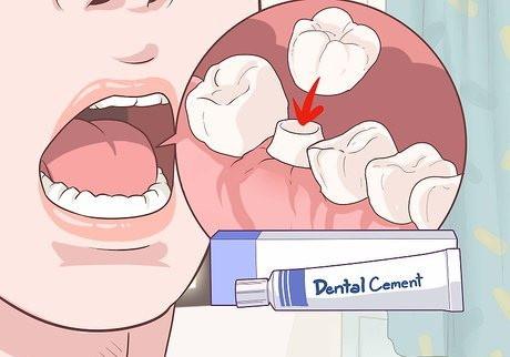 Стоматологический цемент для фиксации коронок