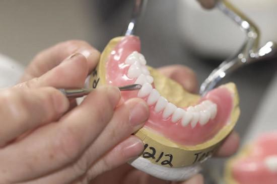 как выглядит работа зубного техника