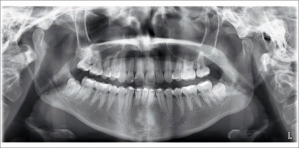Ортопантомограф купить