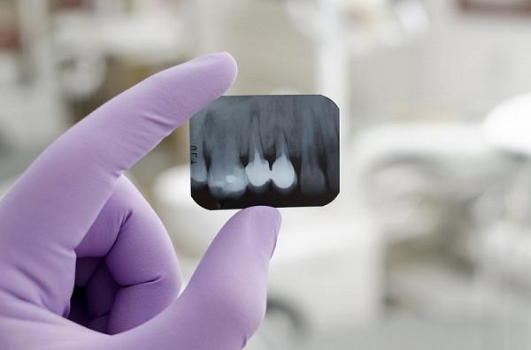 Купить дентальный рентген