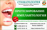 Установка имплантов в стоматологии Щербинки