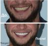 Зубной техник ищет сотрудничества со стоматологами